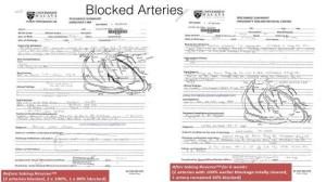 Jeunesse-Reserve-testimony-blocked-arteries-cleared