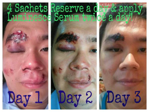 Serum & Reserve helps wound healing