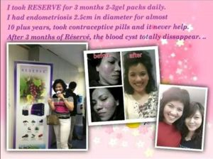 Endometriosis women