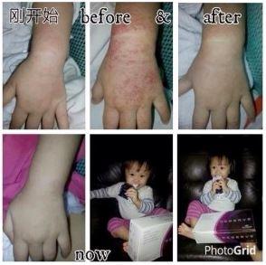 Skin-Condition-Ezcema